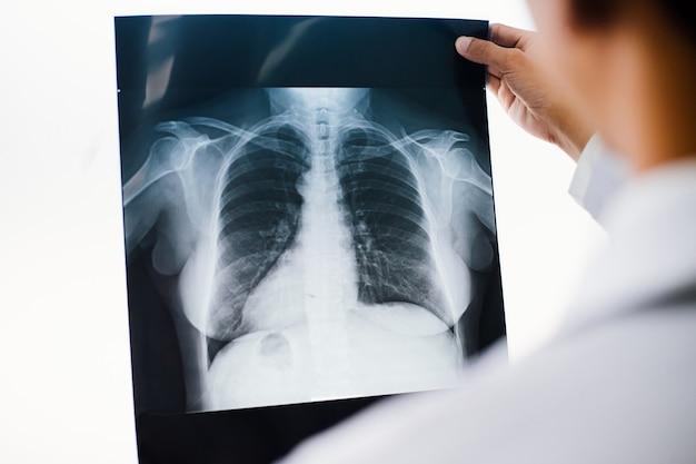 Medico di radiologia che esamina al film dei raggi x del torace del paziente alla clinica di assistenza sanitaria