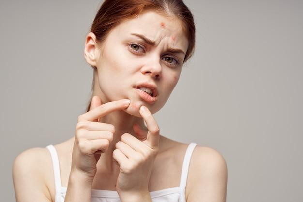 Redhaired donna cosmetologia cura della pelle pubertà sfondo isolato