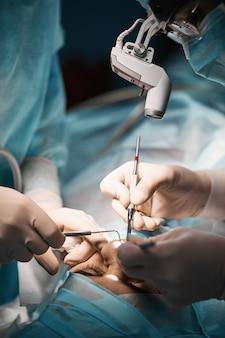 Primo piano di rinoplastica chirurgia plastica per la ricostruzione del naso di un uomo. mani di hirrugs close-up in un guanto bianco.