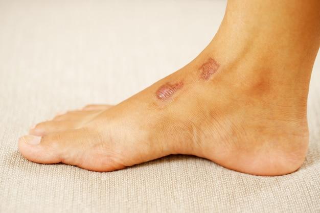 Le cicatrici si formano a seguito del processo di guarigione delle ferite del corpo. che si tratti di ferite da incidenti, ferite chirurgiche o ustioni da ustione.