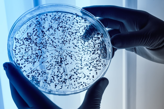 Colture scientifiche di manipolazione in piastre di petri nel frigorifero da laboratorio di bioscienze.