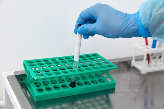 Scienziato che lavora con il campione di sangue in laboratorio