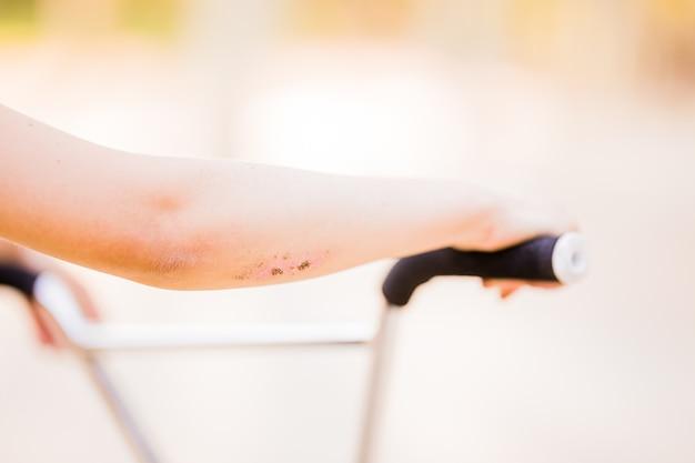 Raschiatura e abrasione è una ferita tipica della bicicletta ferita nel fitness ricreativo fa parte di un sano ...