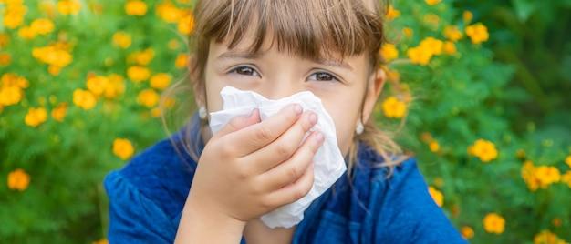 Allergia stagionale in un bambino.