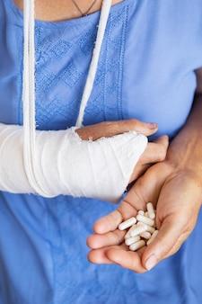 Una donna anziana in pensione con un braccio riavvolto ingessato e una benda tiene in mano delle pillole anestetiche. colpo, frattura, ossa, ospedale.
