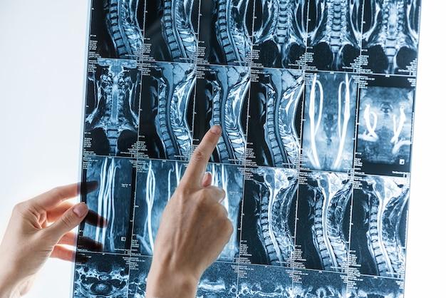 Serie di immagini di risonanza magnetica del rachide cervicale nelle mani di uno specialista, osteocondrosi, concetto di scoliosi