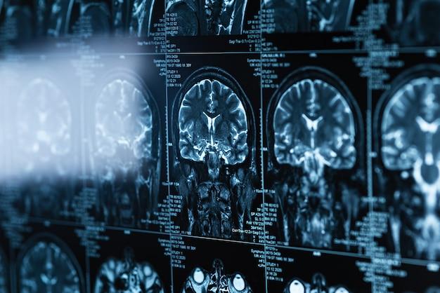 Serie di immagini mri della testa e del cervello, concetto di scansione di risonanza magnetica, giornata mondiale del cancro