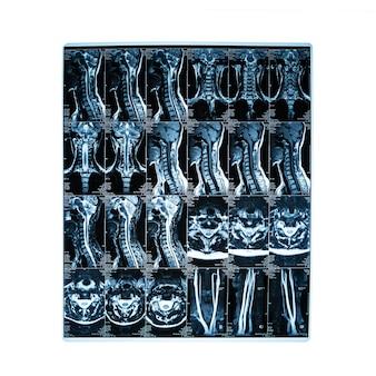 Serie di immagini di risonanza magnetica della colonna vertebrale con sezioni cervicali, osteocondrosi, concetto di scoliosi