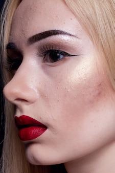Colpo di ragazza con acne e brufoli durante la pubertà