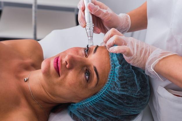 Vista laterale di una donna adulta con cappuccio medico monouso che riceve un trattamento di mesoterapia con dermapen sul viso da un cosmetologo anonimo nel centro termale.