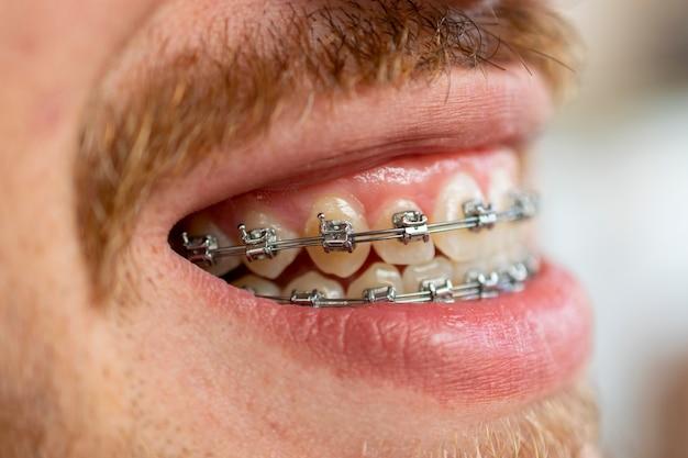 Vista laterale del volto dell'uomo con i baffi e la barba utilizzando apparecchio ortodontico.