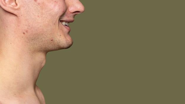 Ritratto di vista laterale del giovane con l'acne
