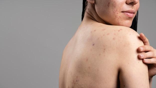 Giovane donna di vista laterale con l'acne