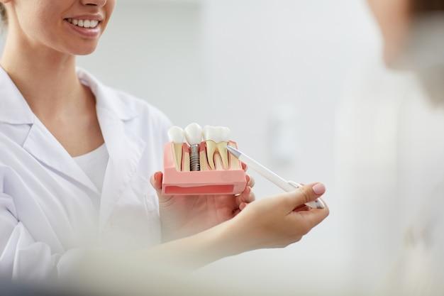 Dentista sorridente che punta al modello del dente