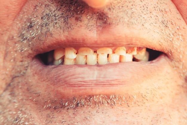 Bocca sorridente di un uomo con il primo piano denti gialli storti