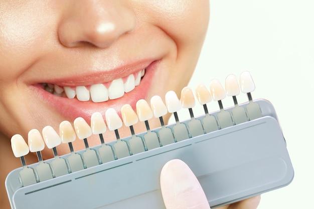 Sorridente giovane donna. sbiancamento dei denti cosmetologico in una clinica odontoiatrica. selezione del tono del