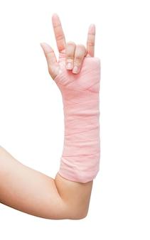 Stecca, osso rotto, isolato rotto della mano su fondo bianco