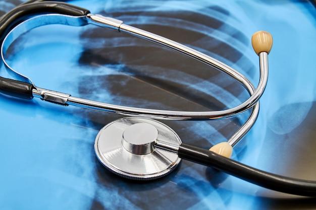 Stetoscopio o fonendoscopio sui raggi x del polmone del fondo. concetto di protezione dal coronavirus. avvicinamento