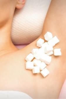 Concetto di zuccheraggio. zollette di zucchero bianco che si trovano sull'ascella di una giovane femmina