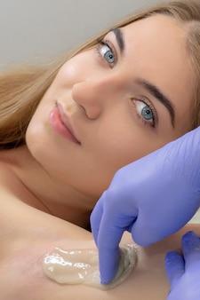Sugaring: epilazione con zucchero liquido sotto l'ascella. master of sugaring rendendo la procedura di depilazione per donna. epilazione con pasta di zucchero liquate. foto verticale