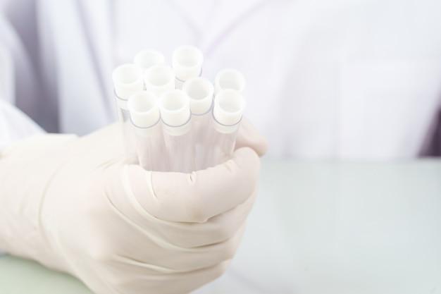 Scienziato tecnico che analizza tenendo la provetta in laboratorio per testarla su covid, covid-19, analisi del virus del coronavirus