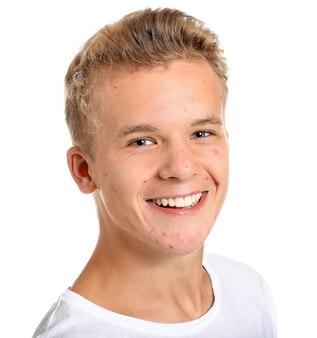 Adolescente con problemi di acne su bianco