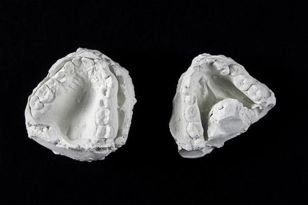 Calco dei denti della mascella in gesso per lavori ortodontici