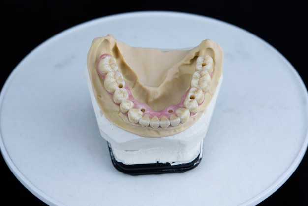 Denti protesi in ceramica sul modello acrilico stampato in laboratorio odontotecnico. vista dall'alto.