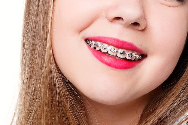 Denti, emozioni, salute, persone, dentista e concetto di stile di vita - sorriso sano e bello, il bambino dal dentista. ritratto di una bambina con apparecchio ortodontico.