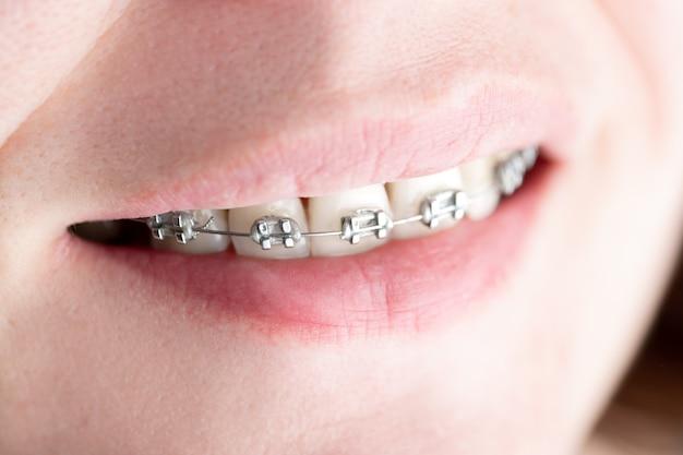 Denti con bretelle installate in primo piano
