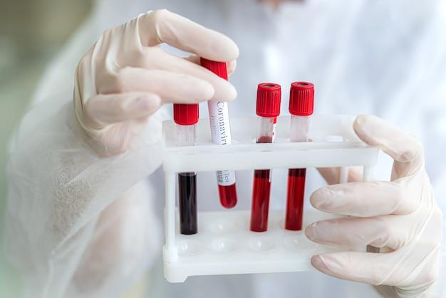 Provetta con sangue di pazienti nelle mani di un'infermiera, primi piani
