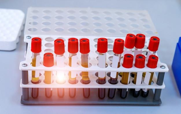 Provette con sangue su un vassoio. laboratorio del sangue. test di malattia. test di emergenza. infezione da virus. test di polmonite. covid-19 e identificazione del coronavirus. pandemia.