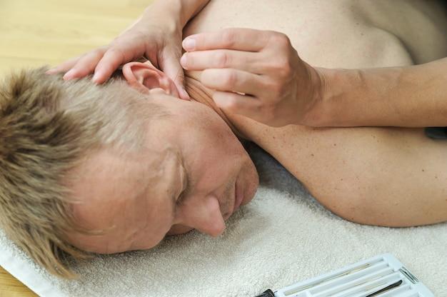 Le mani di therapt stanno applicando aghi ai punti di agopuntura sull'orecchio del paziente
