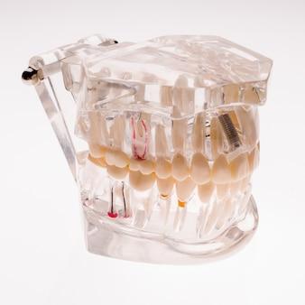 Mascella trasparente della protesi dentaria isolata