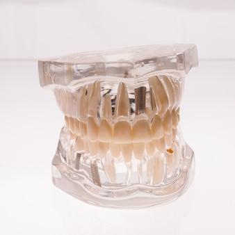 Disposizione della mascella delle protesi dentarie trasparenti su una priorità bassa bianca - immagine