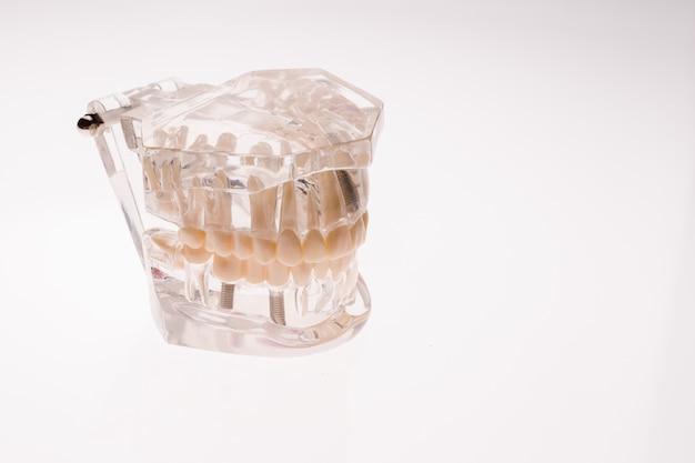 Disposizione della mascella delle protesi dentarie trasparenti su un bianco
