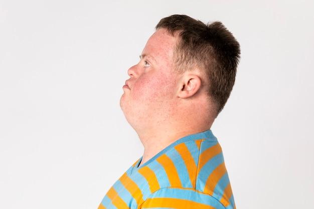 Ragazzo infelice con sindrome di down rivolto di lato