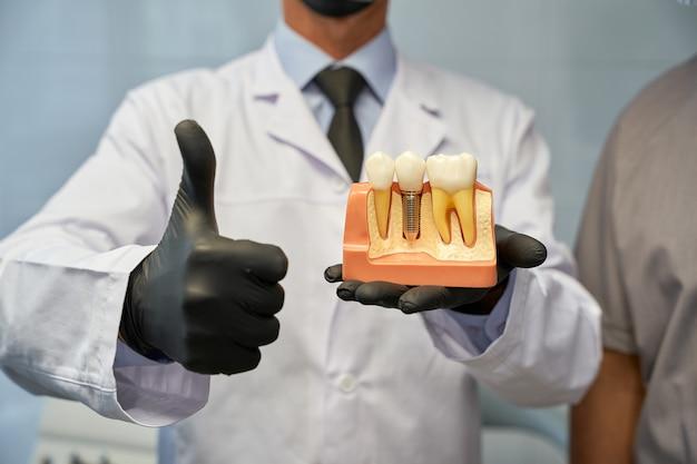 Odontotecnico non riconosciuto in posa con il modello di impianto dentale