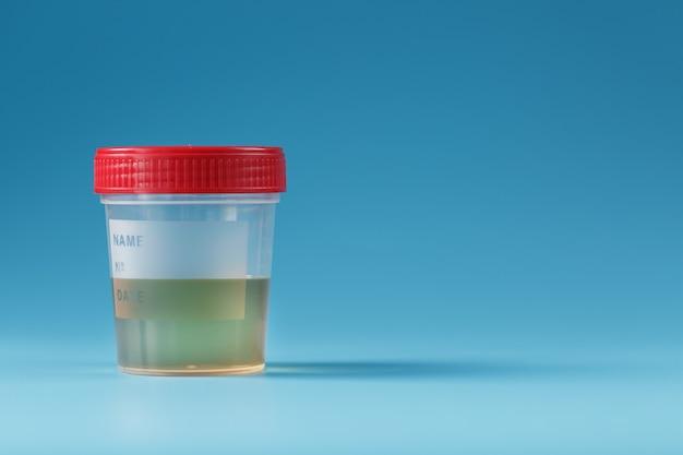 Urina in un contenitore di prova con un coperchio rosso su blu