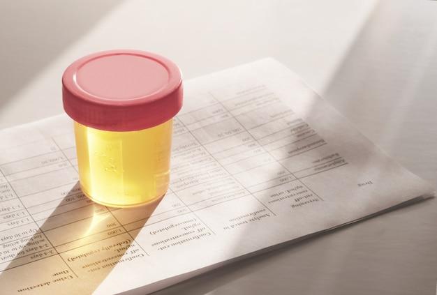 Test delle urine in un barattolo di plastica