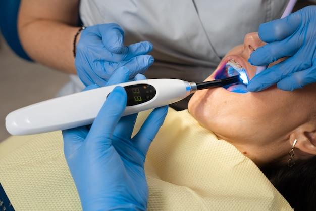 Illuminazione uv dell'otturazione dei denti in fotopolimero. il dentista tratta e rimuove la carie in un paziente.