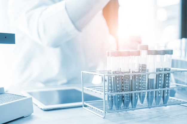 Vacutainer o provetta in laboratorio sul tavolo