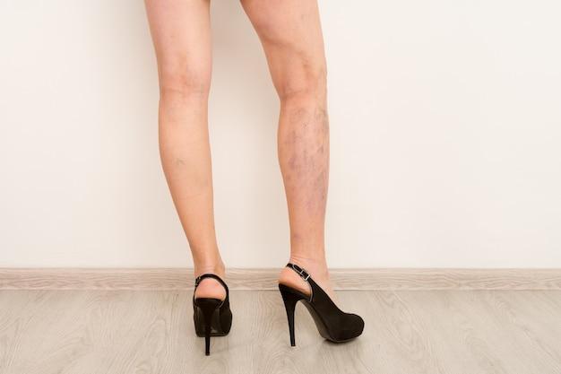 Vene varicose su gambe femminili sottili. flebologia
