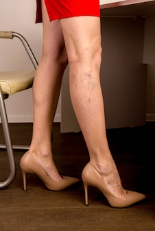 Vene varicose su gambe femminili sottili