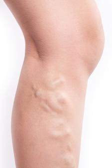 Vene varicose in un primo piano della gamba della donna isolato.
