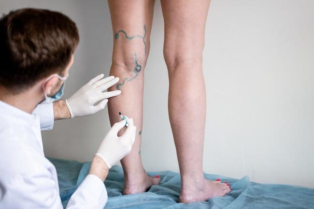 Markup venoso. il chirurgo vascolare segna le vene per la chirurgia delle varici.