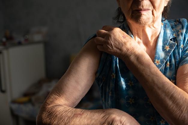 Donna molto anziana tende il braccio per la vaccinazione