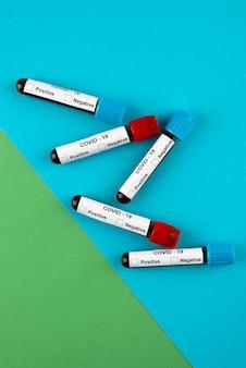 Vista sopra la disposizione dei test del pcr del coronavirus