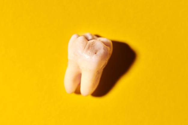 Dente del giudizio con carie, sfondo giallo. asportato terzo molare affetto da carie. estrazioni dentarie.