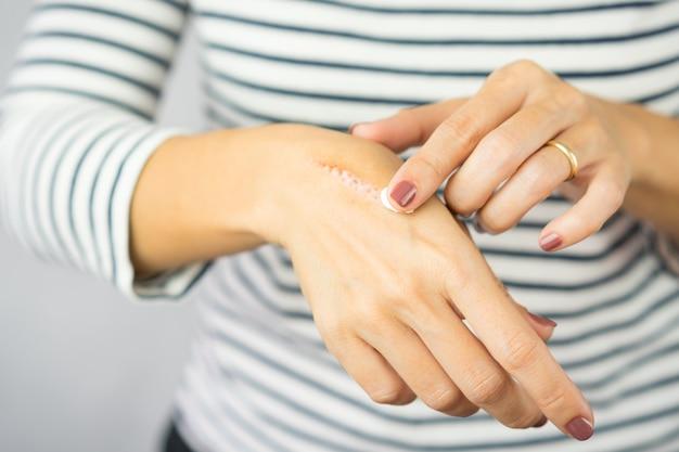 Una donna che applica la crema di rimozione della cicatrice per guarire l'olio da cucina brucia la cicatrice sulle sue mani. guarigione, rimozione, trattamento con bruciatura a olio caldo, vitamina e, cura delle cicatrici, prodotti per la cura della pelle, crema medica.